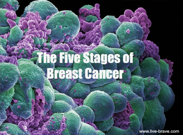 Five Stages of Breast Cancer